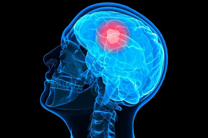 глиобластома головного мозга фото
