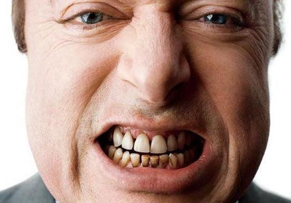как укрепить эмаль зубов у детей
