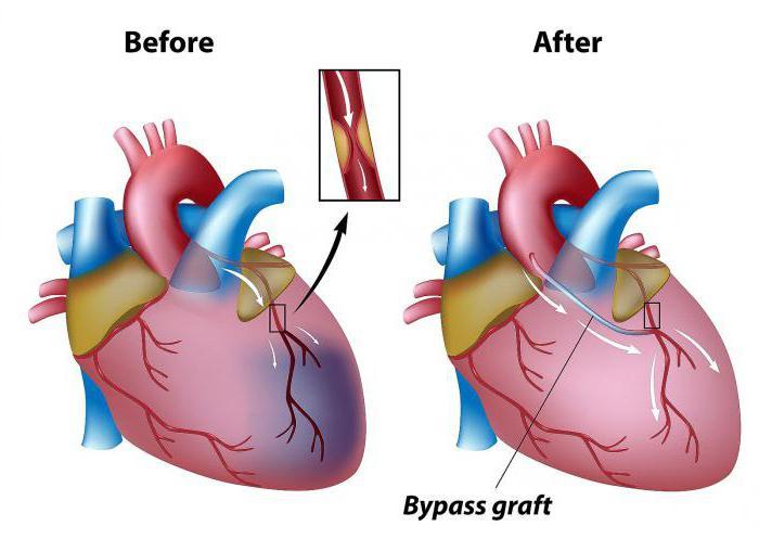 Шунтирование сердца: что это такое, сколько живут