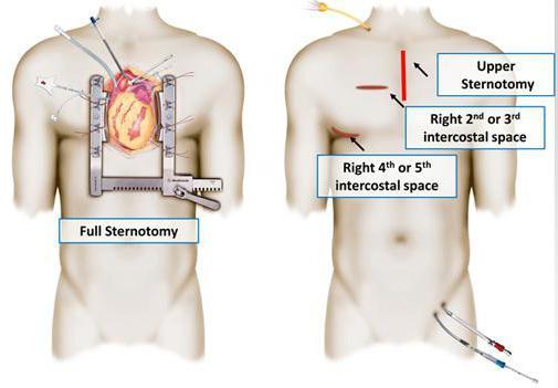 шунтирование сердца сколько живут после операции отзывы