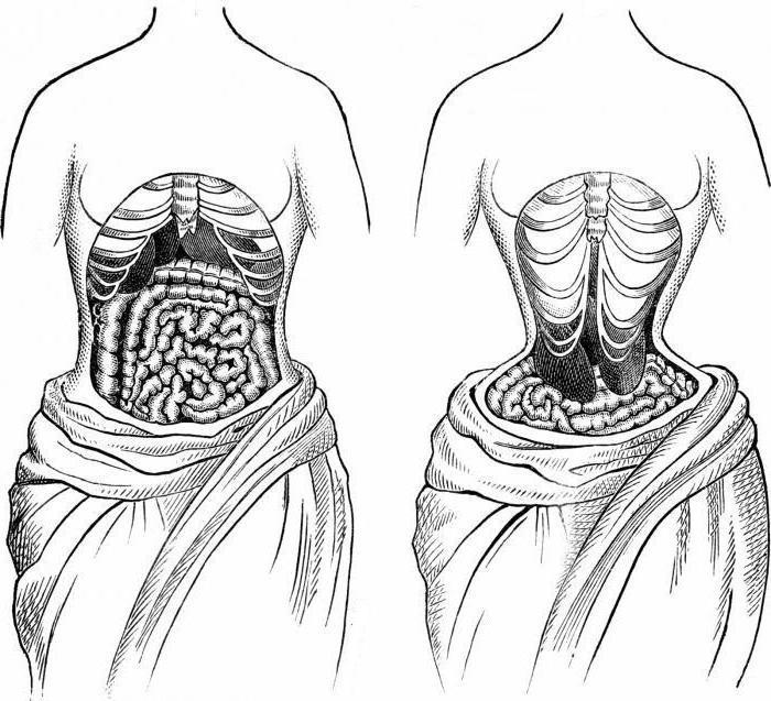 утягивающий корсет waist trainer отзывы