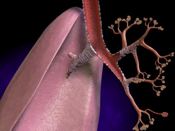 Как вылечить народными средствами шейный остеохондроз