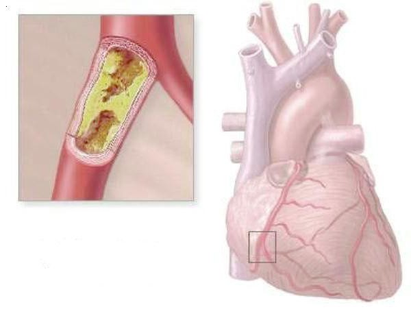 повышение холестерина в крови лечение
