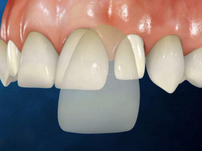 как устанавливают виниры на зубы фото