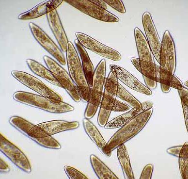 среда обитания инфузории туфельки размножение