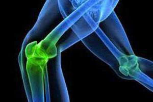 как укрепить коленные суставы народные средства