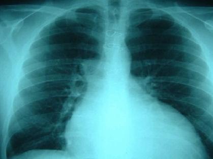 патологический формы грудной клетки