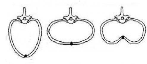 коническая форма грудной клетки