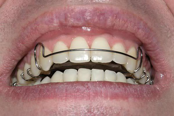 Пластины на зубы для   topdentru