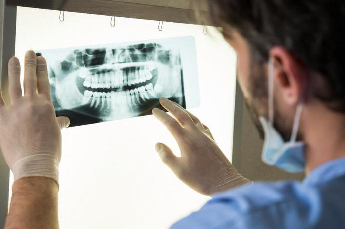 зубные пластины для выравнивания зубов