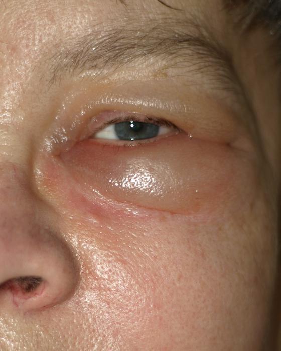 начинает отекать лицо, краснеют глаза и развивается конъюнктивит