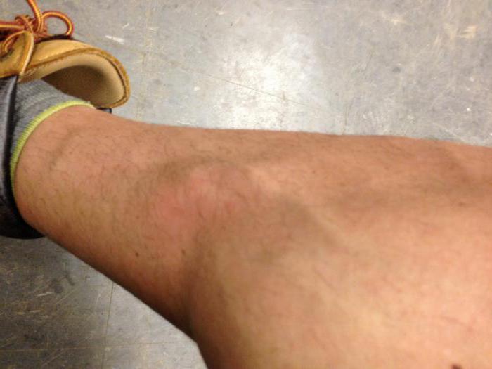 Артрит нижних конечностей симптомы фото и лечение