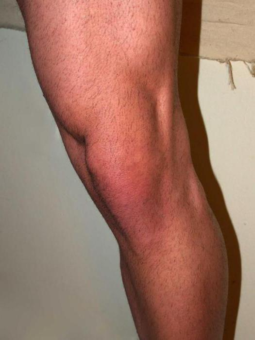 Боль в мениске или артрит фото