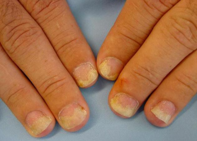 дистрофия ногтей у ребенка фото