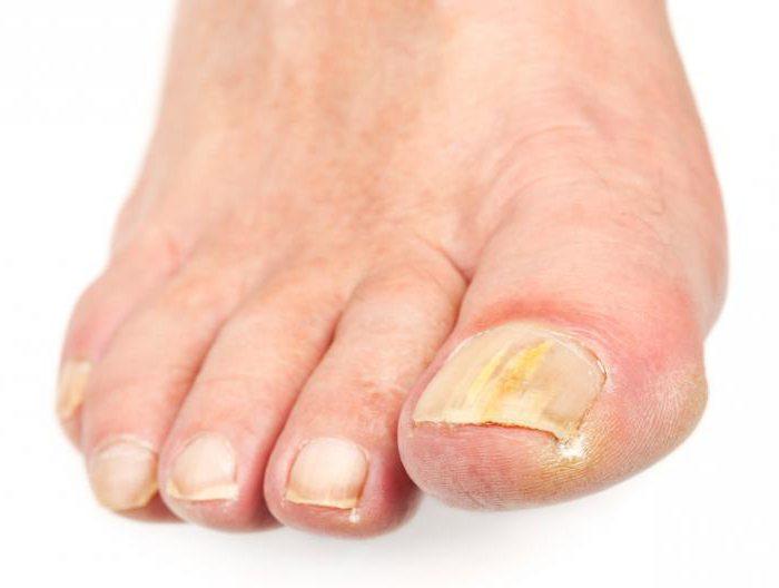 диагностика по ногтям пальцев ног