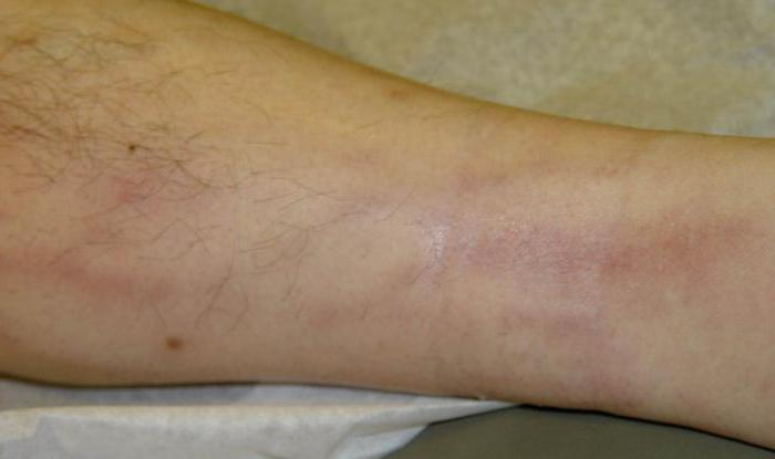 раневые инфекции лечение