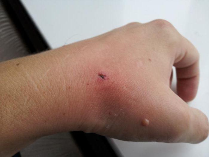 гнойная раневая инфекция