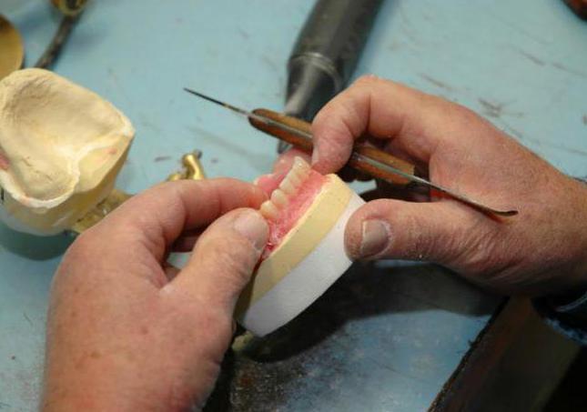 этапы изготовления бюгельного протеза на аттачменах