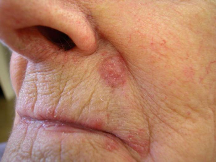 базально клеточный рак кожи лица