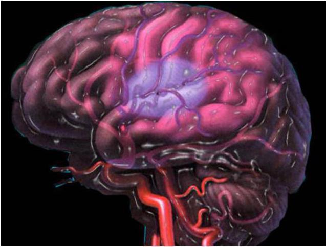 Церебральная ишемия 2 степени у новорожденных: симптомы и лечение ...