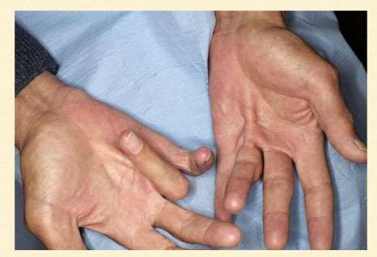 нейропатия срединного нерва