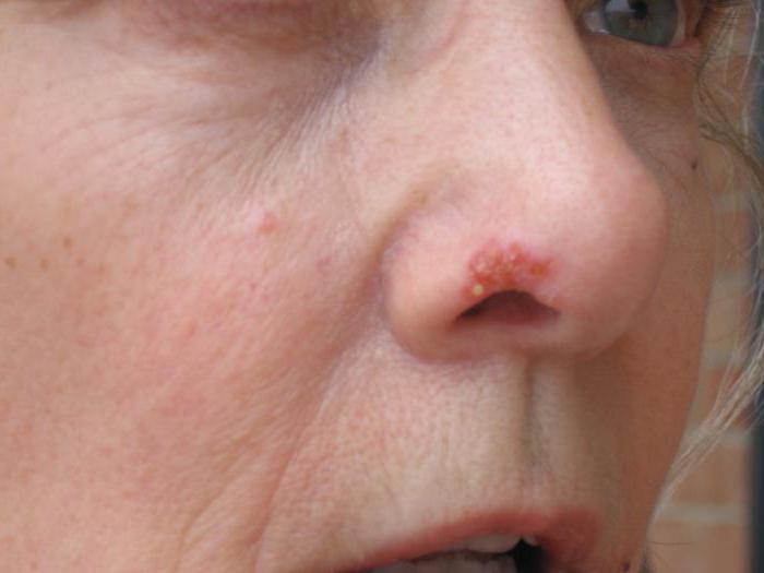 Простуда на губе психосоматика 35
