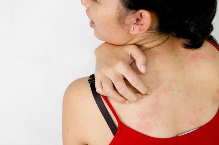 лахезис гомеопатия показания к применению осложнения