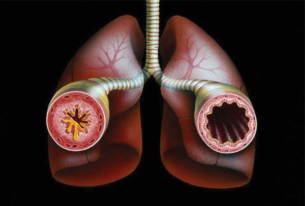 Бронхиальная астма от чего она бывает thumbnail