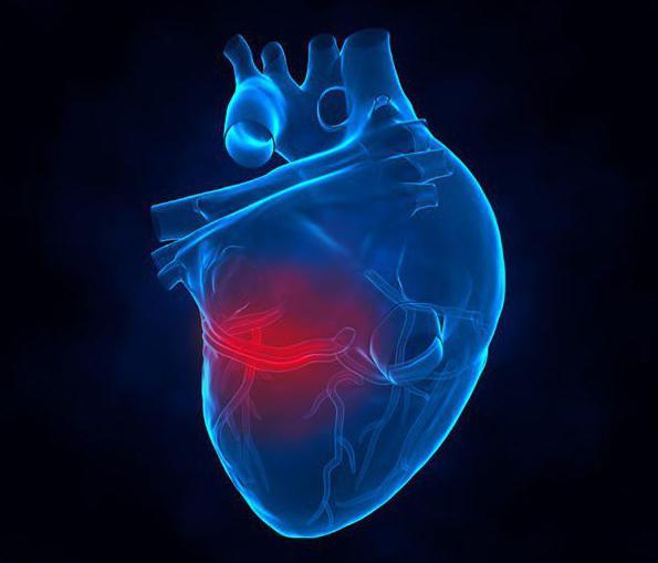 какие могут быть последствия обширного инфаркта миокарда