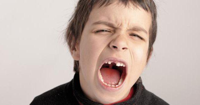 Подвывих челюсти: симптомы и лечение