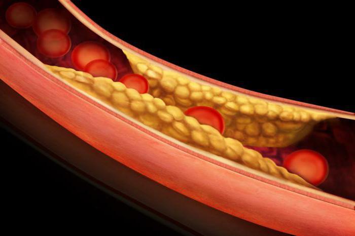 нормы теста толерантности глюкозе