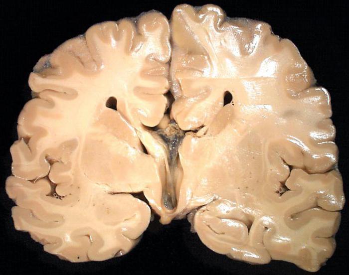 ликвородинамические нарушения лечение