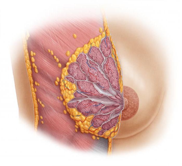 дисгормональные заболевания молочных желез