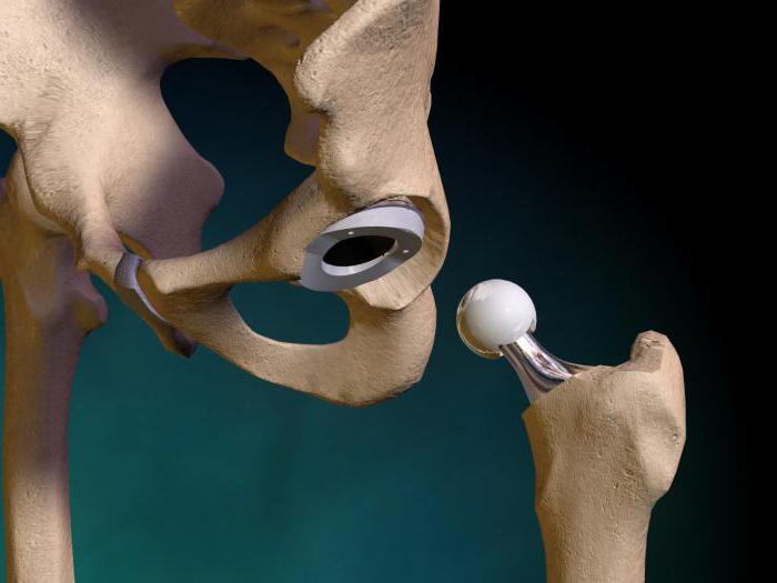 лфк после эндопротезирования тазобедренного сустава