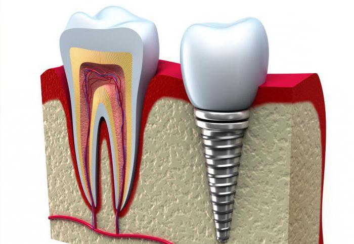 срок службы импланты зубов