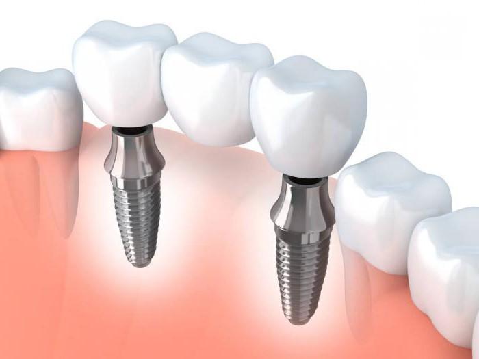 гарантированный срок службы зубных имплантов