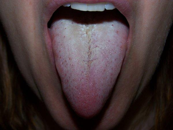 Налет на языке - симптом патологии