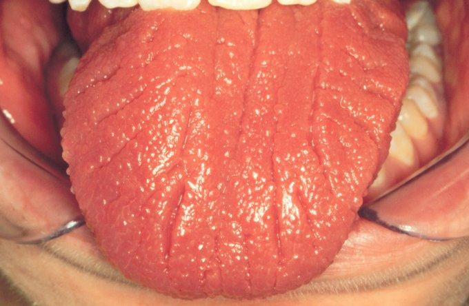 О чем говорит неровная поверхность языка