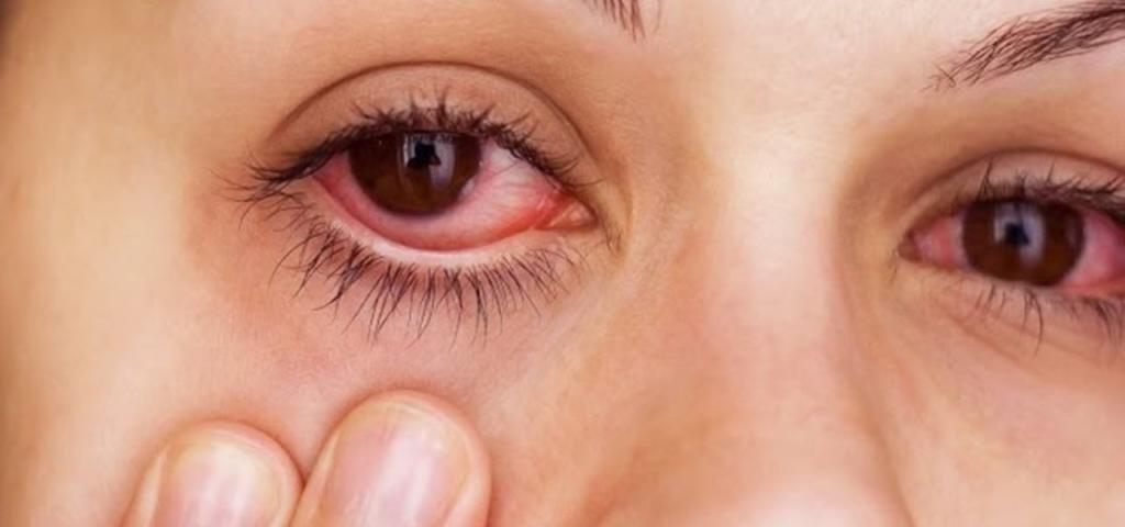 Слезятся глаза: причина, симптомы заболеваний и их лечение