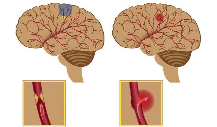 Сахарный диабет осложнения на головной мозг