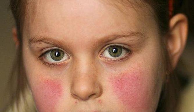 Туберкулез кожи фото начальная стадия 4