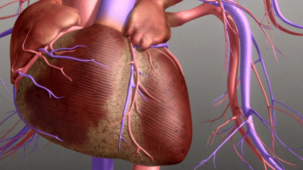 Мерцательная аритмия пароксизмальная форма - возможные причины, последствия и особенности лечения