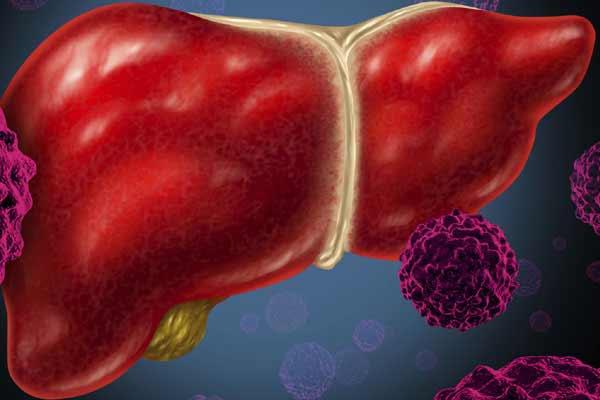 Есть как хронический рак крови, так и острый лейкоз, обычно злокачественное новообразование в крови имеет разные разновидности по типу поражения тех или иных групп клеток в крови.