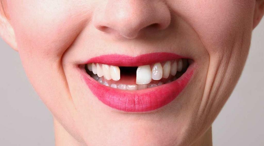 Отсутствие зубов меняет внешность