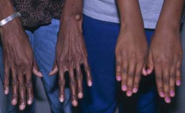 Синдром Марфана - Причины, симптомы и лечение. Журнал 24
