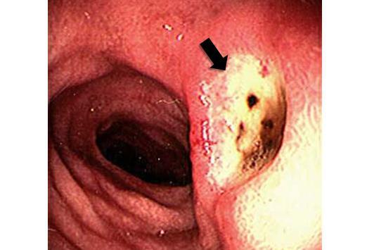 Лечение артрита в тазобедренном суставе