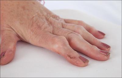 артрит причины симптомы