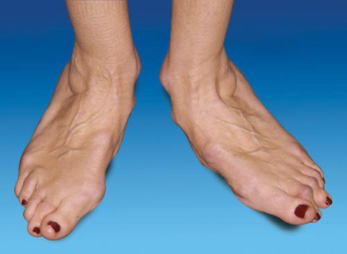 артрит голеностопного сустава причины