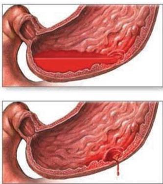 кровотечение желудка