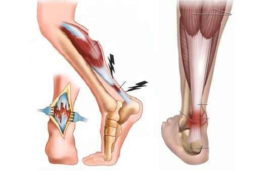 Ахиллобурсит голеностопного сустава лечение восполение болезнь коленых суставов у стариков